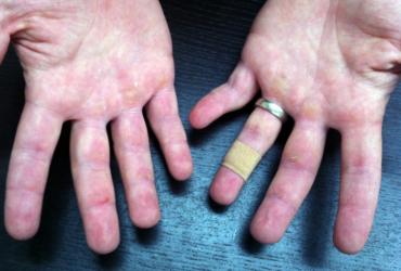 manos estropeadas