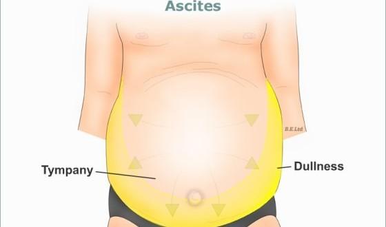 cuerpo ascitis