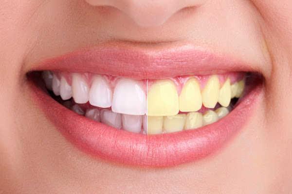 dientes mujer