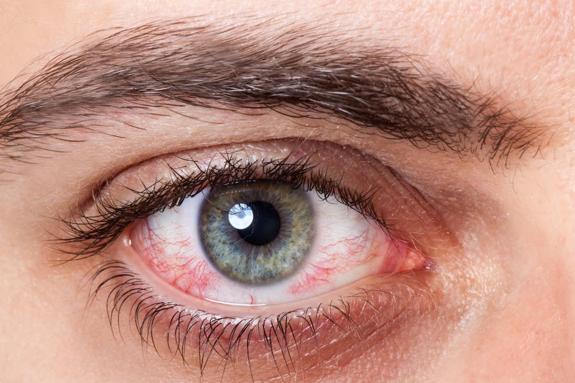 alimentos para bajar la presion ocular