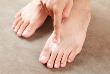 curar el pie de atleta