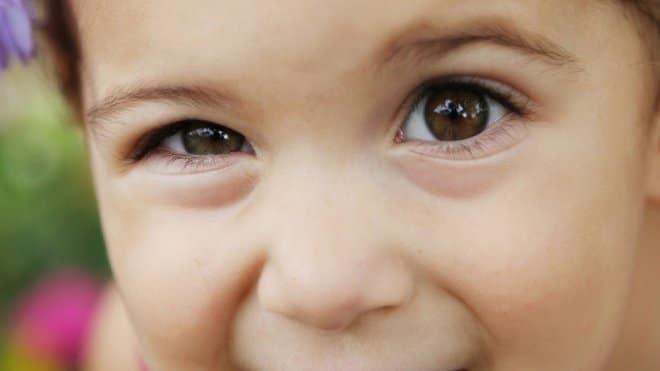ambioplia en niños