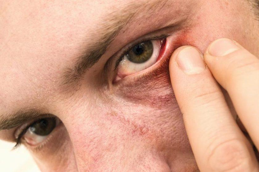 enfermedad ocular