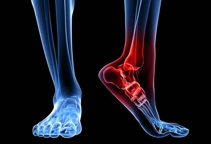 Tibial Posterior Lesiones Tratamiento Y Estiramientos Consejo Al Día