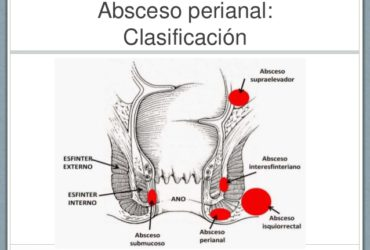 infeccion anal