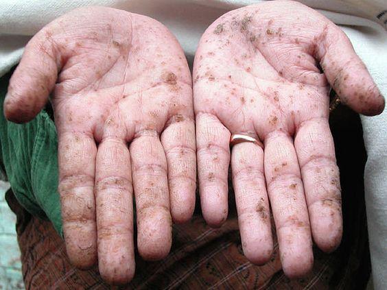manos intoxicadas