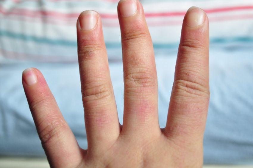 manos frias