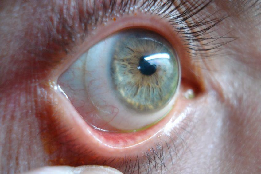 problema ocular
