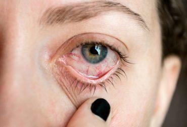 ojo afectado